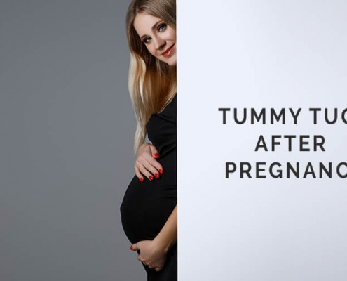 pregnancy and tummy tuck
